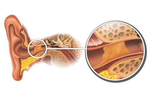 Cérumen et bouchons de cire