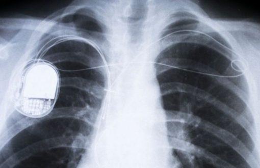 Pacemaker une faille de sécurité pourrait être mortelle