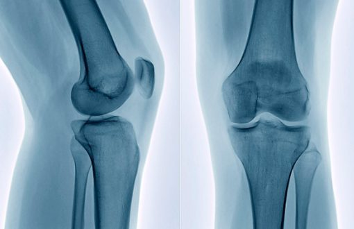 traitement ostéoporose